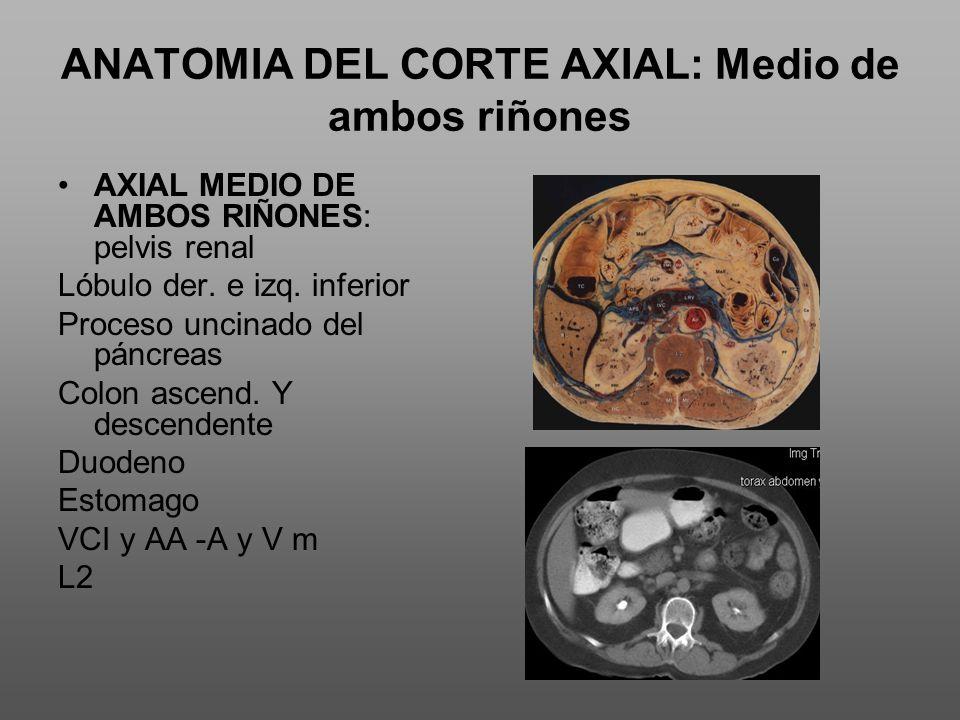ANATOMIA DEL CORTE AXIAL: Medio de ambos riñones AXIAL MEDIO DE AMBOS RIÑONES: pelvis renal Lóbulo der.
