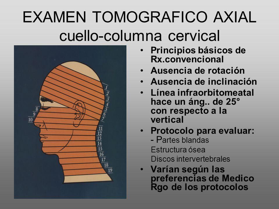 EXAMEN TOMOGRAFICO AXIAL cuello-columna cervical Principios básicos de Rx.convencional Ausencia de rotación Ausencia de inclinación Línea infraorbitom