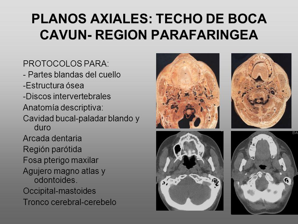 PLANOS AXIALES: TECHO DE BOCA CAVUN- REGION PARAFARINGEA PROTOCOLOS PARA: - Partes blandas del cuello -Estructura ósea -Discos intervertebrales Anatom
