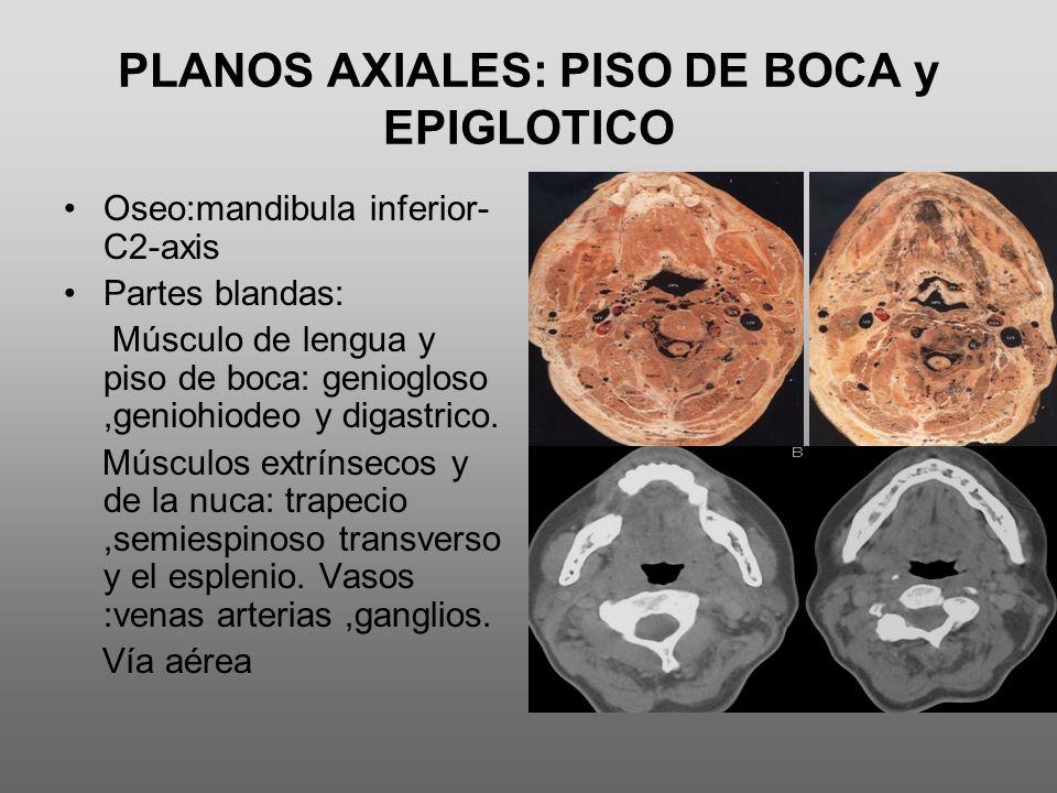 PLANOS AXIALES: PISO DE BOCA y EPIGLOTICO Oseo:mandibula inferior- C2-axis Partes blandas: Músculo de lengua y piso de boca: geniogloso,geniohiodeo y