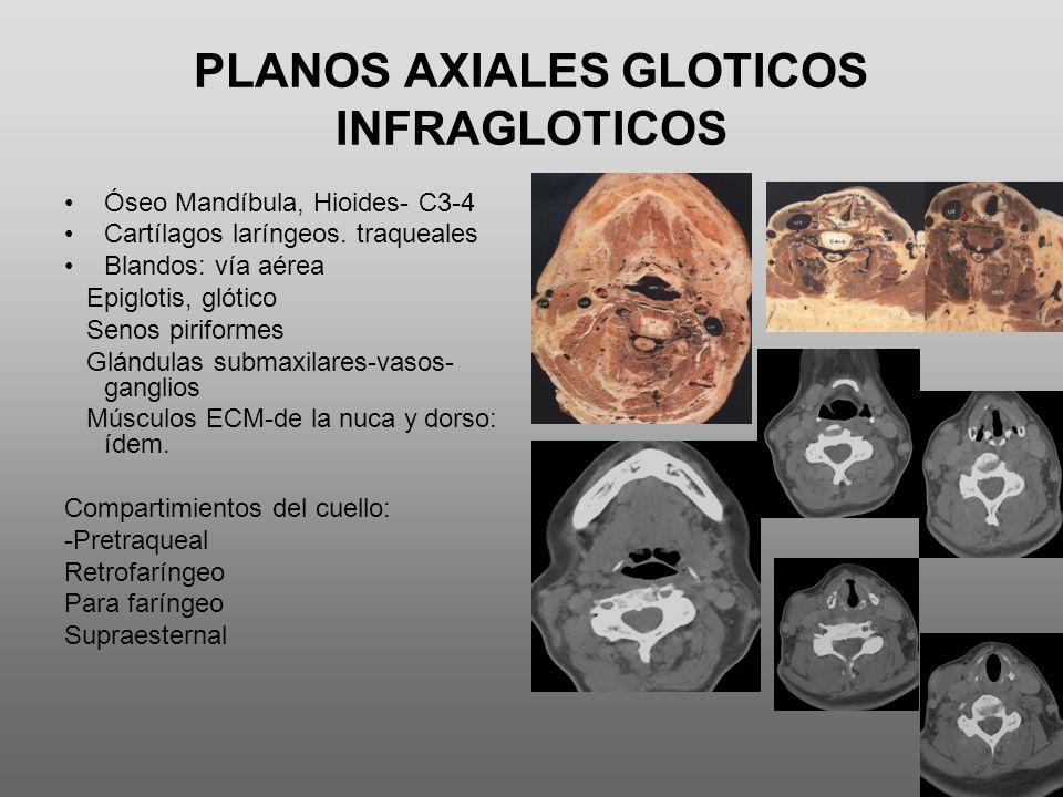PLANOS AXIALES GLOTICOS INFRAGLOTICOS Óseo Mandíbula, Hioides- C3-4 Cartílagos laríngeos. traqueales Blandos: vía aérea Epiglotis, glótico Senos pirif