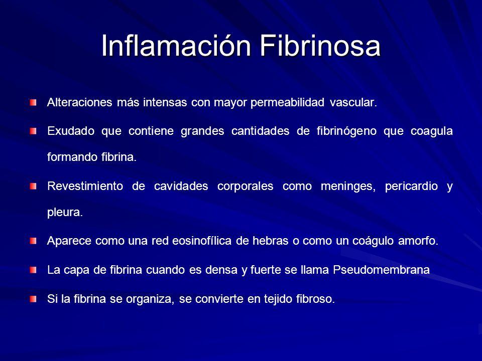Inflamación Fibrinosa Alteraciones más intensas con mayor permeabilidad vascular. Exudado que contiene grandes cantidades de fibrinógeno que coagula f