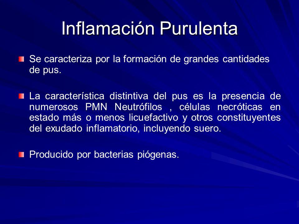 Inflamación Purulenta Se caracteriza por la formación de grandes cantidades de pus. La característica distintiva del pus es la presencia de numerosos