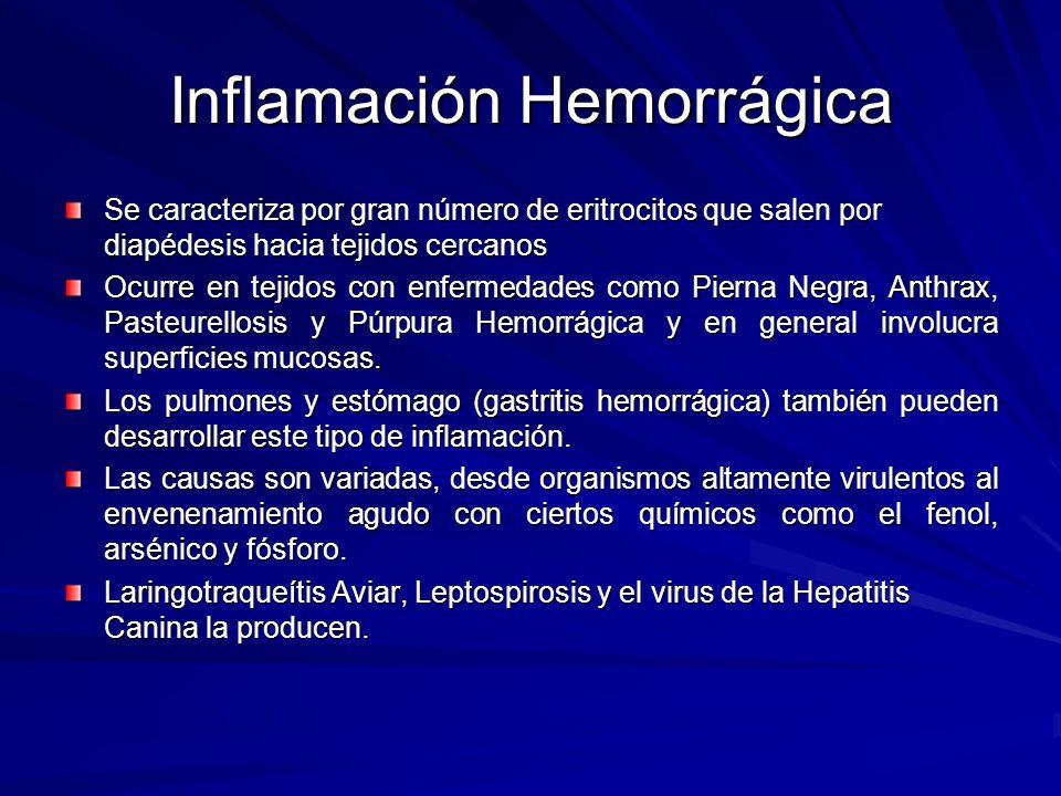 Inflamación Hemorrágica Se caracteriza por gran número de eritrocitos que salen por diapédesis hacia tejidos cercanos Ocurre en tejidos con enfermedad