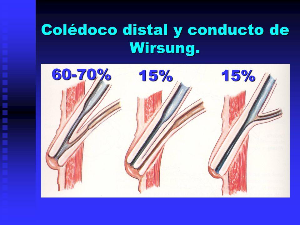 Colédoco distal y conducto de Wirsung. 60-70% 60-70% 15%15%