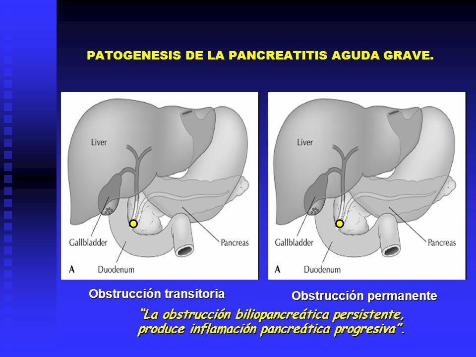 Obstrucción transitoria Obstrucción transitoria Obstrucción permanente La obstrucción biliopancreática persistente, produce inflamación pancreática pr