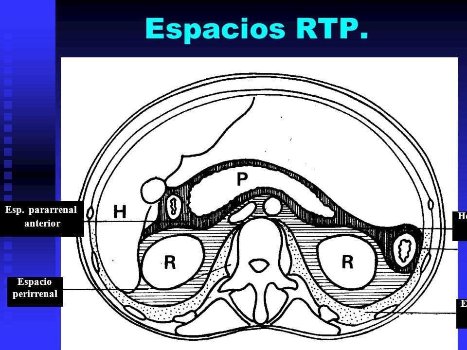 Espacios RTP. Esp. pararrenal anterior Espacio perirrenal Hoja ant. fascia de Gerota Esp. pararrenal posterior