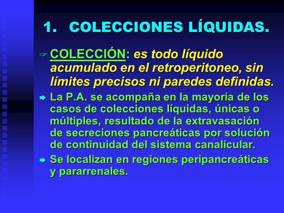 1.COLECCIONES LÍQUIDAS. COLECCIÓN: es todo líquido acumulado en el retroperitoneo, sin límites precisos ni paredes definidas. COLECCIÓN: es todo líqui