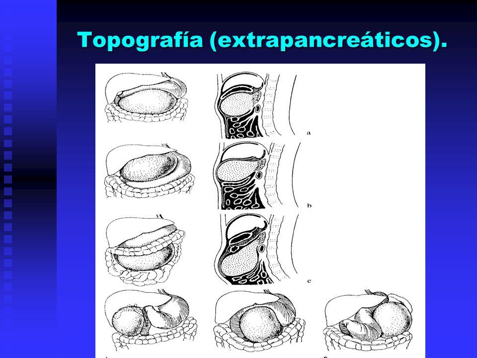 Topografía (extrapancreáticos).
