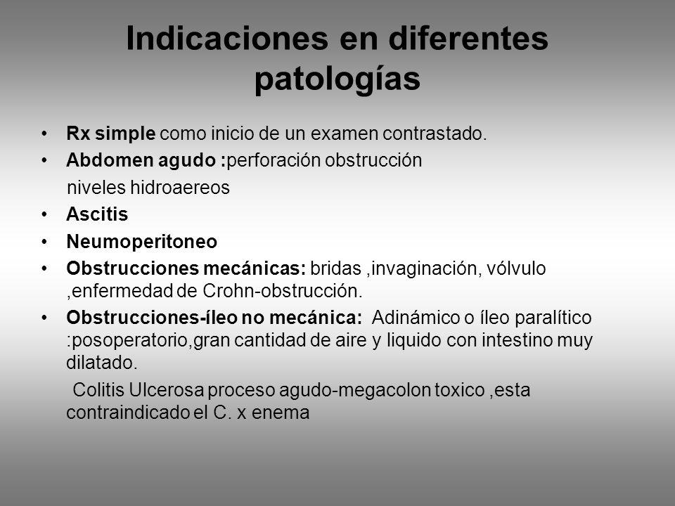 Indicaciones en diferentes patologías Rx simple como inicio de un examen contrastado. Abdomen agudo :perforación obstrucción niveles hidroaereos Ascit