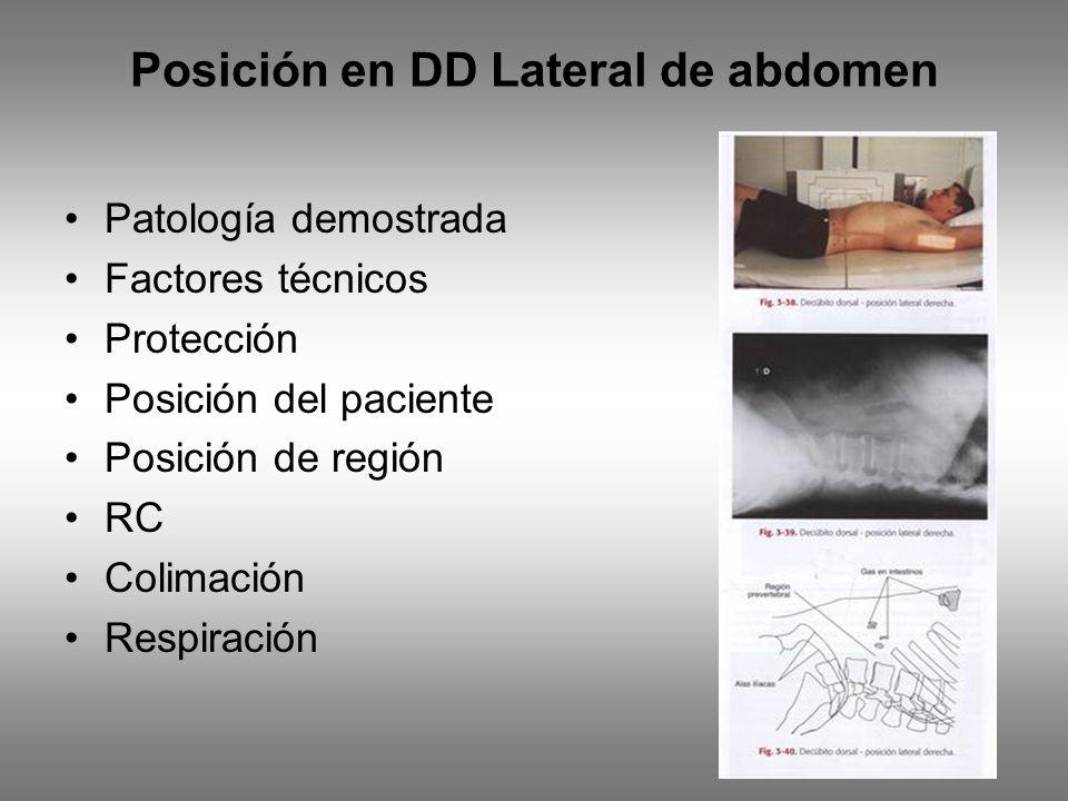 Posición en DD Lateral de abdomen Patología demostrada Factores técnicos Protección Posición del paciente Posición de región RC Colimación Respiración