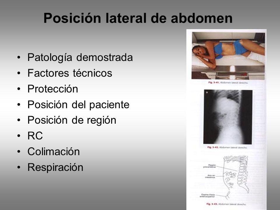 Posición lateral de abdomen Patología demostrada Factores técnicos Protección Posición del paciente Posición de región RC Colimación Respiración