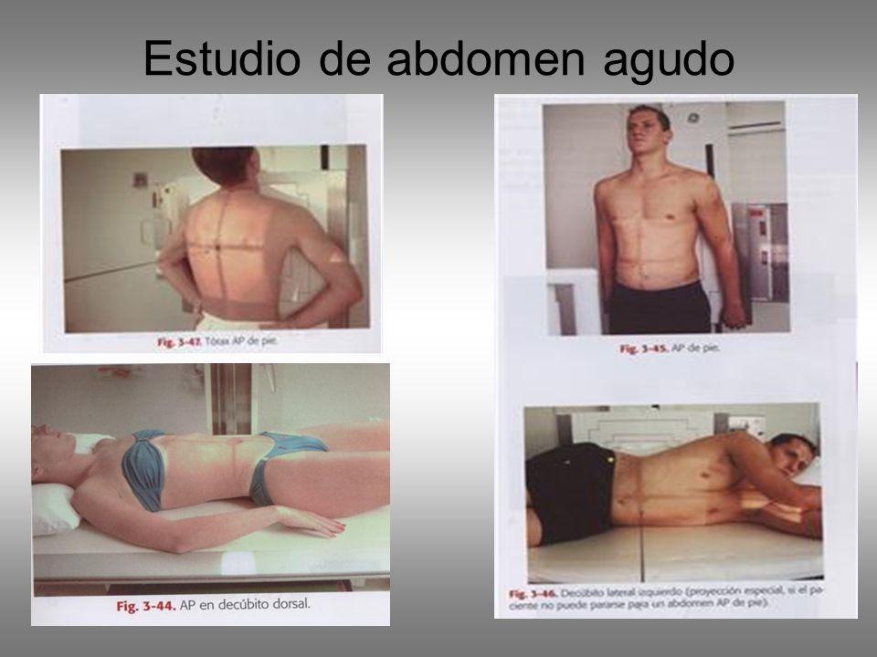 Estudio de abdomen agudo