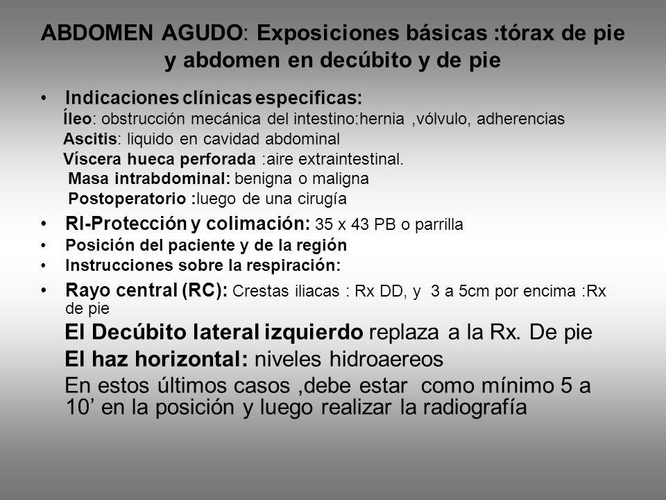 ABDOMEN AGUDO: Exposiciones básicas :tórax de pie y abdomen en decúbito y de pie Indicaciones clínicas especificas: Íleo: obstrucción mecánica del int
