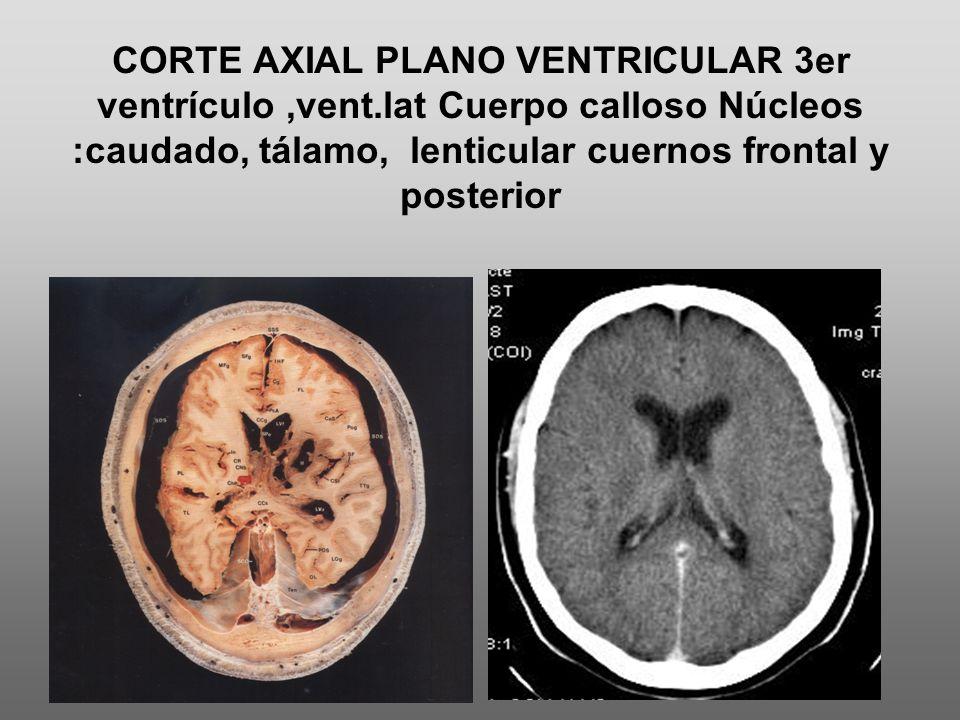 CORTE AXIAL PLANO VENTRICULAR 3er ventrículo,vent.lat Cuerpo calloso Núcleos :caudado, tálamo, lenticular cuernos frontal y posterior