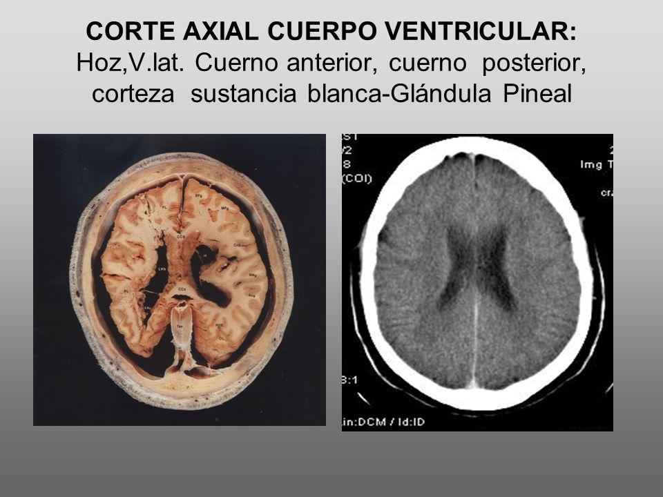 CORTE AXIAL CUERPO VENTRICULAR: Hoz,V.lat. Cuerno anterior, cuerno posterior, corteza sustancia blanca-Glándula Pineal