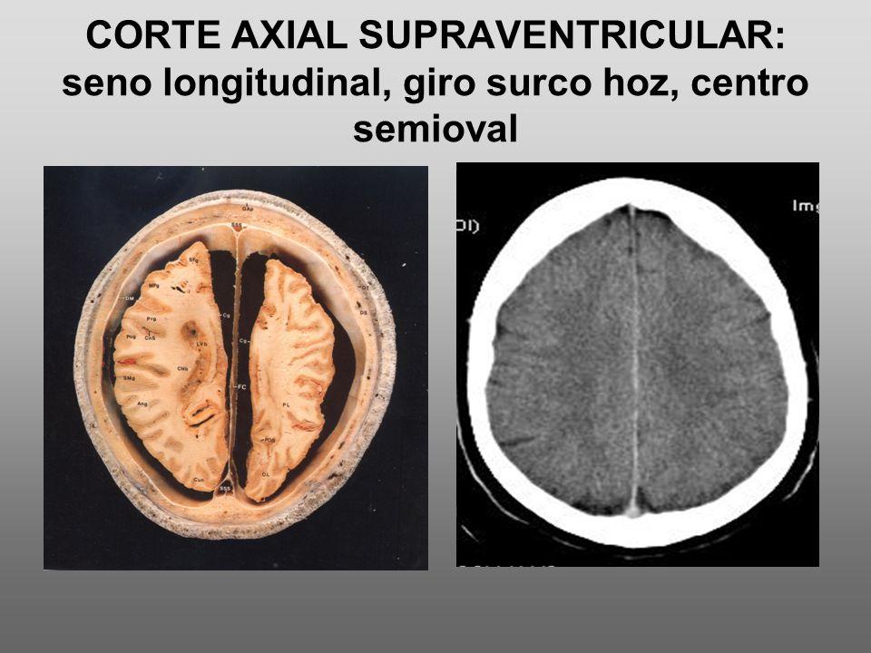 CORTE AXIAL SUPRAVENTRICULAR: seno longitudinal, giro surco hoz, centro semioval