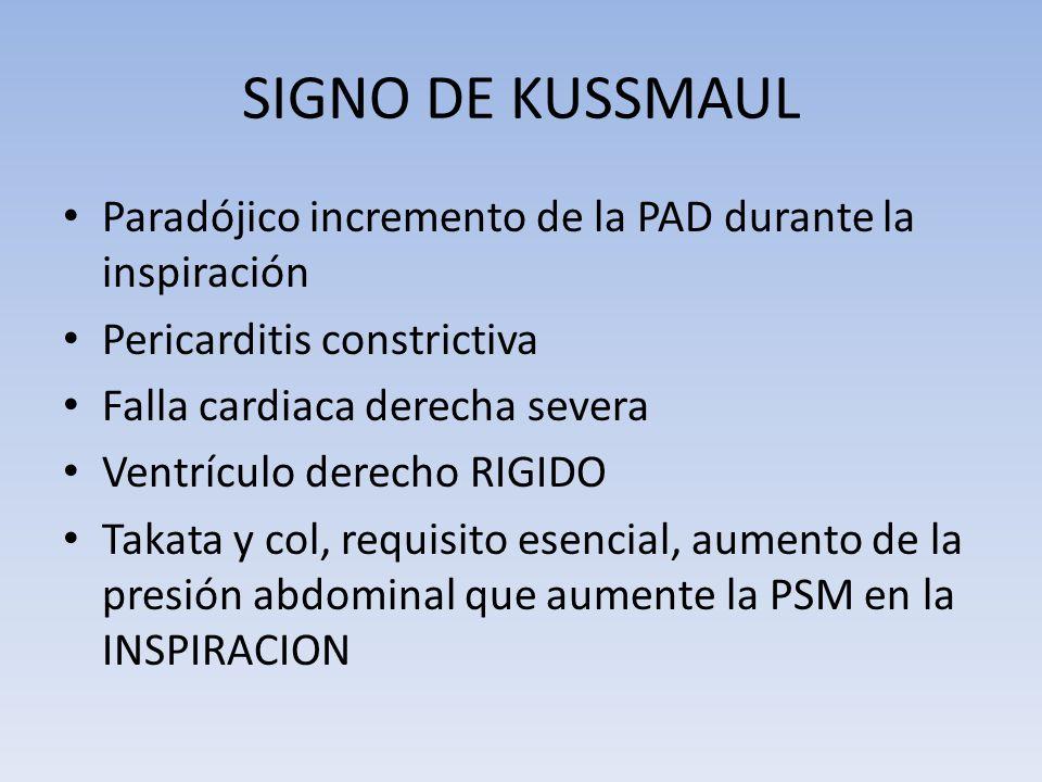 SIGNO DE KUSSMAUL Paradójico incremento de la PAD durante la inspiración Pericarditis constrictiva Falla cardiaca derecha severa Ventrículo derecho RI