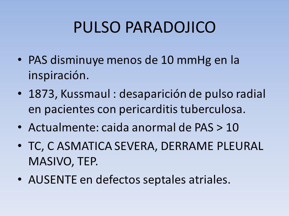 PULSO PARADOJICO PAS disminuye menos de 10 mmHg en la inspiración. 1873, Kussmaul : desaparición de pulso radial en pacientes con pericarditis tubercu