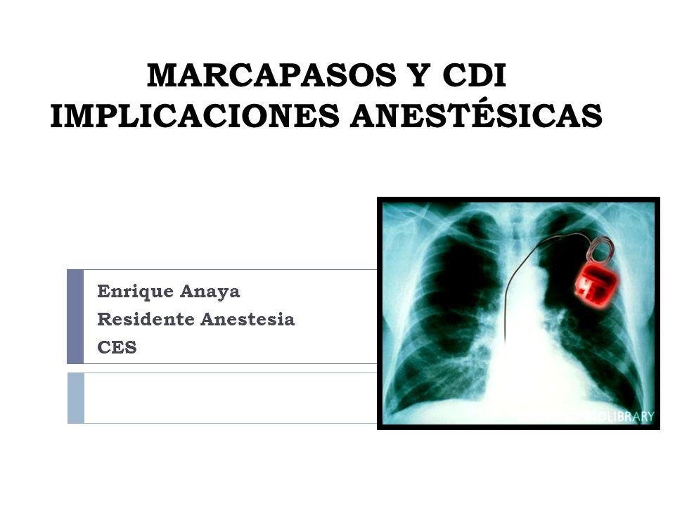 MARCAPASOS Y CDI IMPLICACIONES ANESTÉSICAS Enrique Anaya Residente Anestesia CES