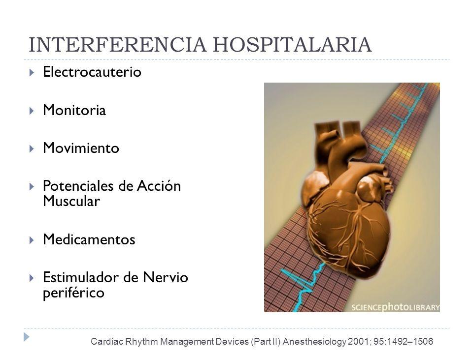 INTERFERENCIA HOSPITALARIA Electrocauterio Monitoria Movimiento Potenciales de Acción Muscular Medicamentos Estimulador de Nervio periférico Cardiac R