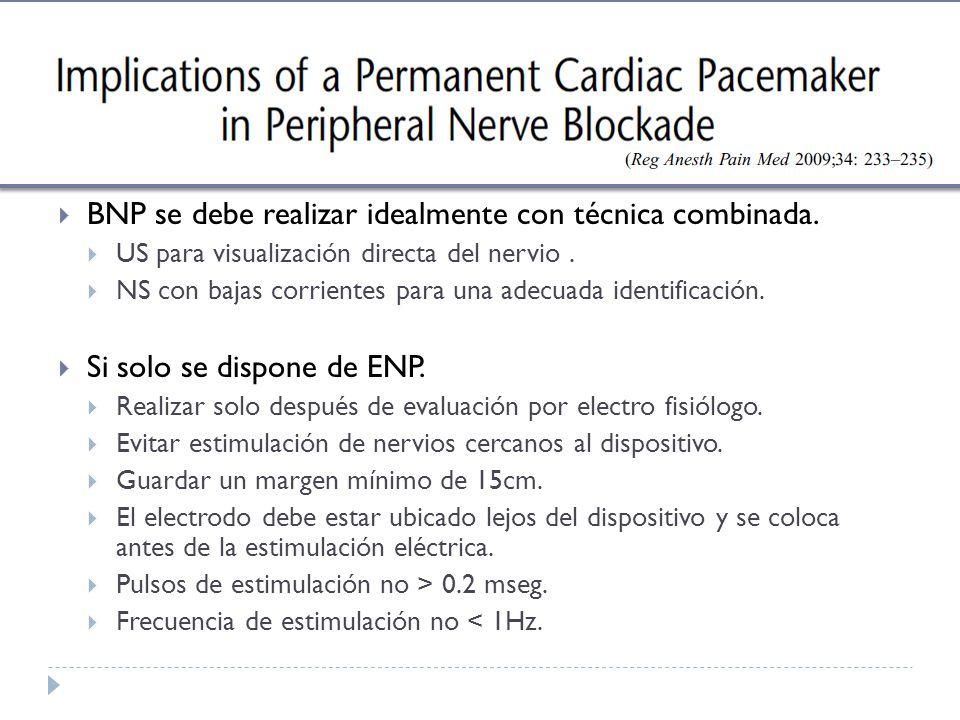 BNP se debe realizar idealmente con técnica combinada. US para visualización directa del nervio. NS con bajas corrientes para una adecuada identificac