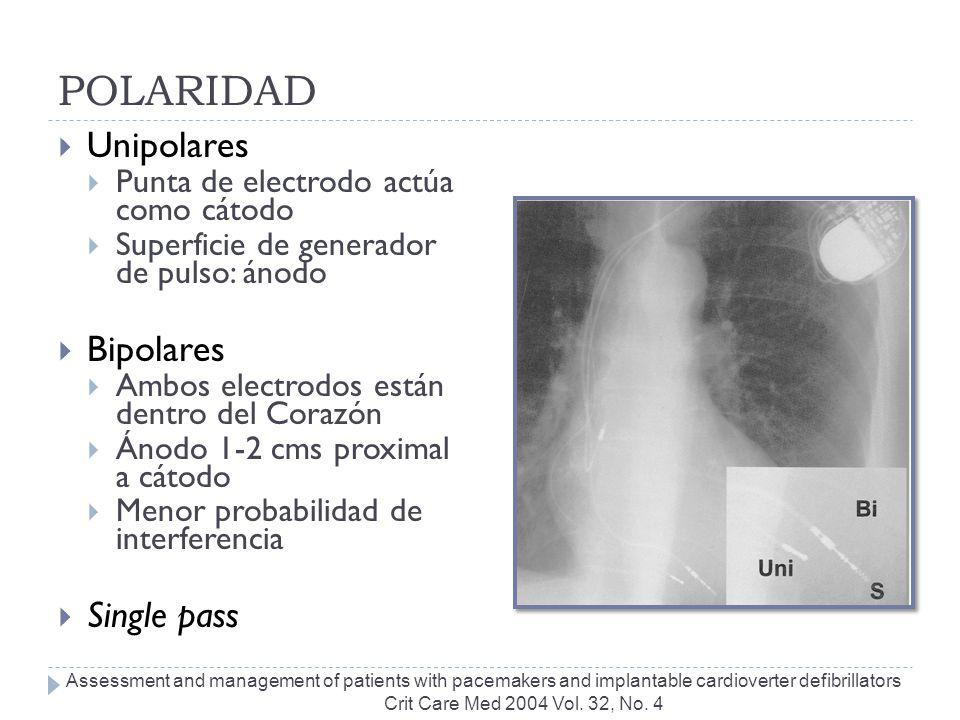 POLARIDAD Unipolares Punta de electrodo actúa como cátodo Superficie de generador de pulso: ánodo Bipolares Ambos electrodos están dentro del Corazón