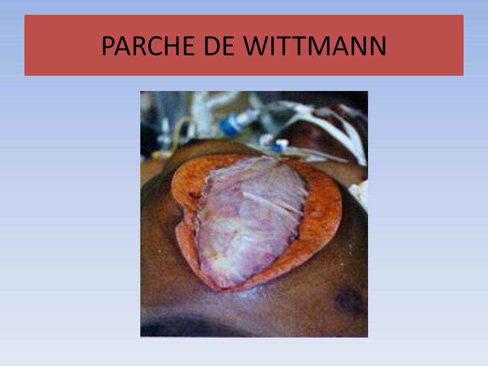 PARCHE DE WITTMANN