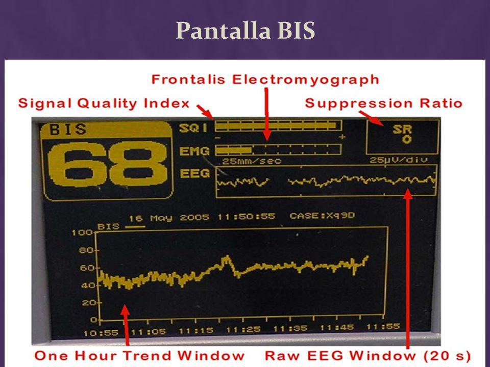 Pantalla BIS EMG