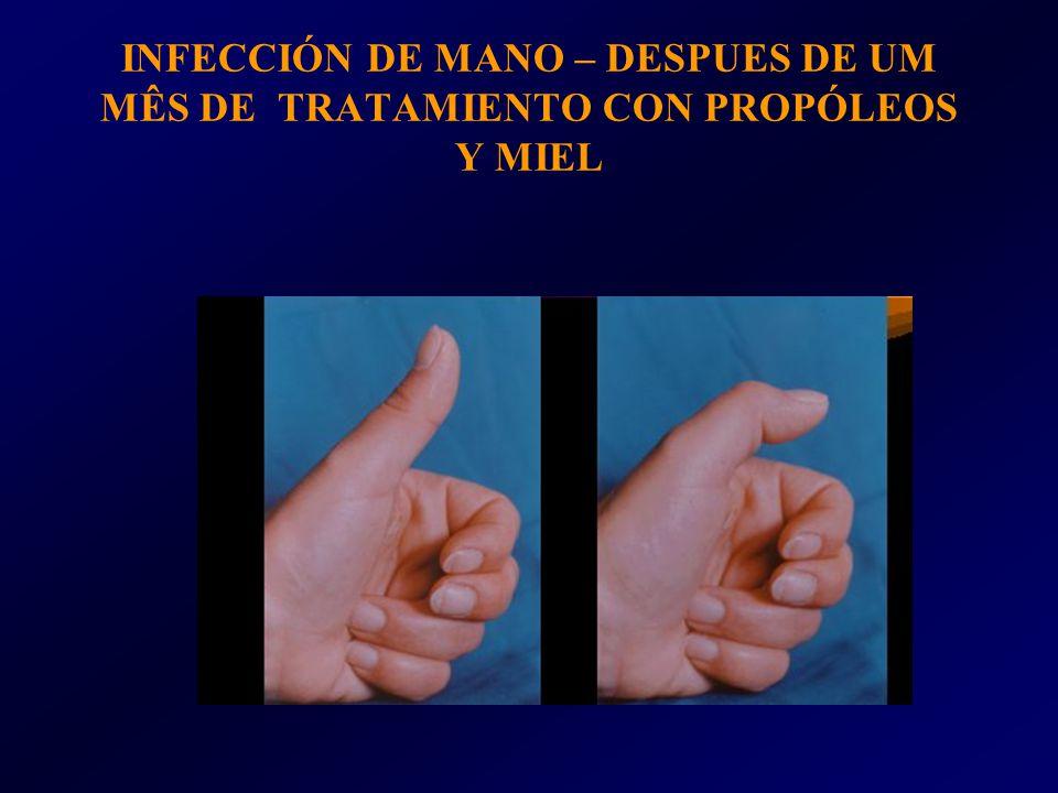 INFECCIÓN DE MANO – DESPUES DE UM MÊS DE TRATAMIENTO CON PROPÓLEOS Y MIEL