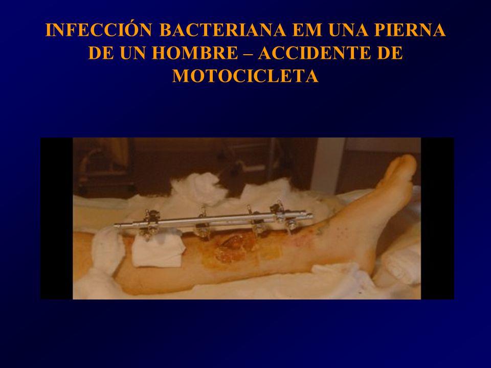 INFECCIÓN BACTERIANA EM UNA PIERNA DE UN HOMBRE – ACCIDENTE DE MOTOCICLETA