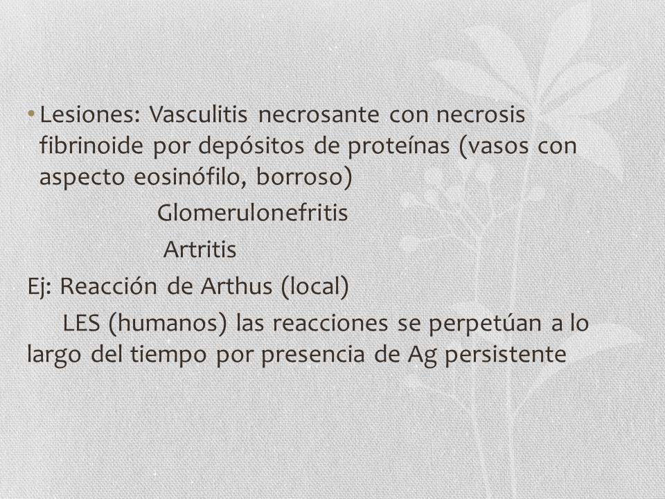 Lesiones: Vasculitis necrosante con necrosis fibrinoide por depósitos de proteínas (vasos con aspecto eosinófilo, borroso) Glomerulonefritis Artritis