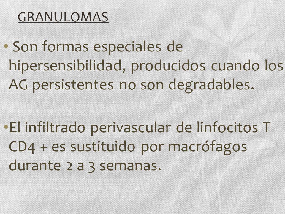 GRANULOMAS Son formas especiales de hipersensibilidad, producidos cuando los AG persistentes no son degradables. El infiltrado perivascular de linfoci