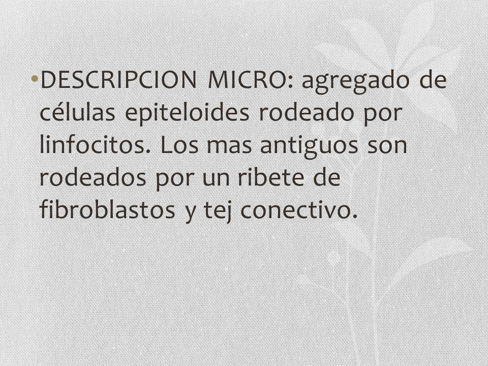 DESCRIPCION MICRO: agregado de células epiteloides rodeado por linfocitos. Los mas antiguos son rodeados por un ribete de fibroblastos y tej conectivo