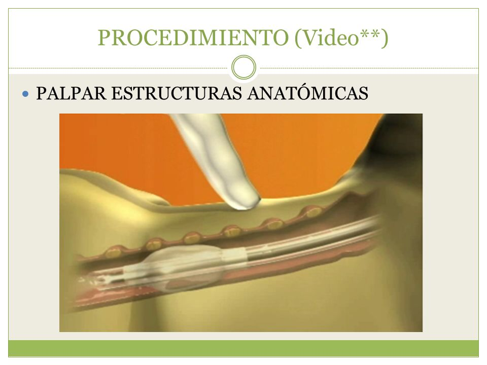 PROCEDIMIENTO (Video**) PALPAR ESTRUCTURAS ANATÓMICAS