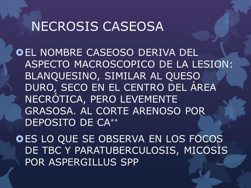 NECROSIS CASEOSA EL NOMBRE CASEOSO DERIVA DEL ASPECTO MACROSCOPICO DE LA LESION: BLANQUESINO, SIMILAR AL QUESO DURO, SECO EN EL CENTRO DEL ÁREA NECRÓT