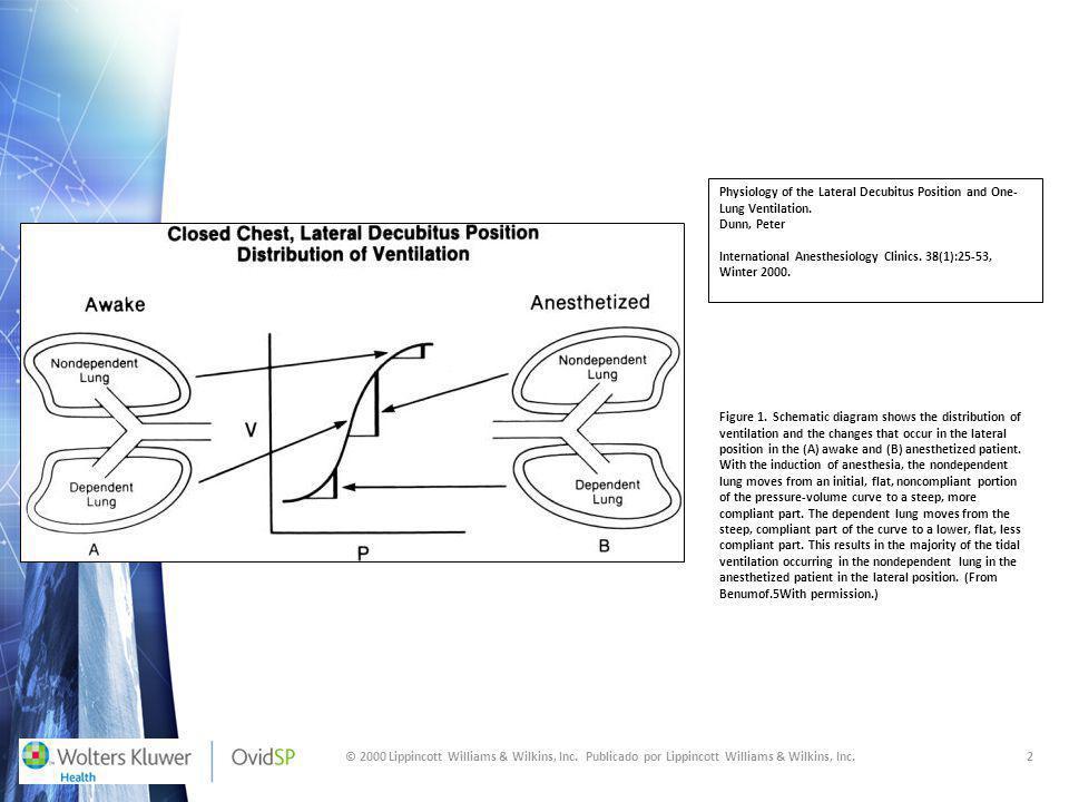 © 2000 Lippincott Williams & Wilkins, Inc. Publicado por Lippincott Williams & Wilkins, Inc.2 Physiology of the Lateral Decubitus Position and One- Lu