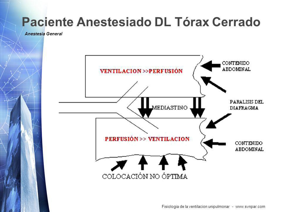 Paciente Anestesiado DL Tórax Cerrado Anestesia General 1.