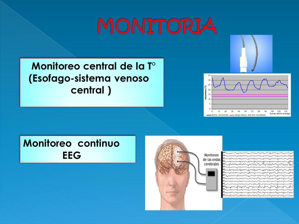 Monitoreo central de la T° (Esofago-sistema venoso central ) Monitoreo central de la T° (Esofago-sistema venoso central ) Monitoreo continuo EEG Monit