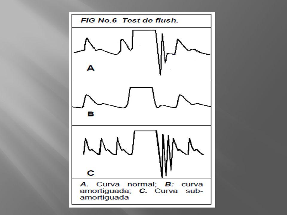 Retorno venoso 150-750 ml Si GC pcte precarga dep Se puede usar en vent espontanea y arrtimias Evaluacion pctes con shock Sensib 97% Especif 94%