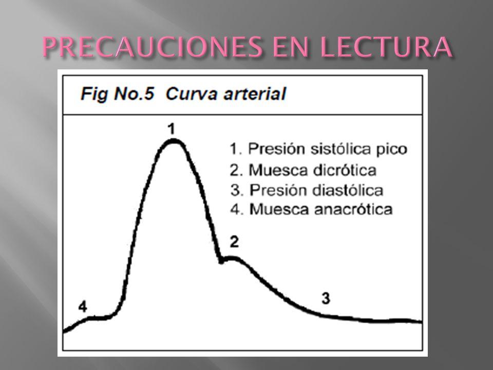 CVC o linea venosa periferica Linea radial Litio 0.15-0.3 mM Sensor en linea arterial Curva: formula steward-Hamilton