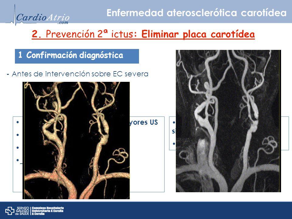 2. Prevención 2ª ictus: Eliminar placa carotídea 1 Confirmación diagnóstica - Antes de intervención sobre EC severa Angio-RNM Sensibilidad y especifid