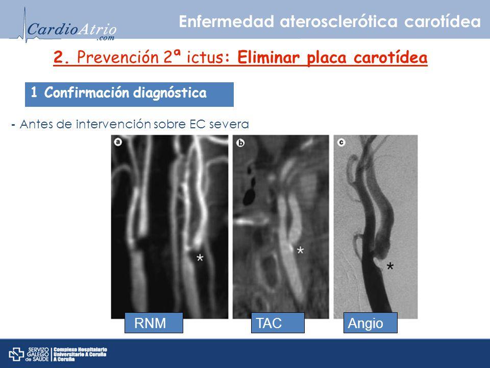 2. Prevención 2ª ictus: Eliminar placa carotídea 1 Confirmación diagnóstica - Antes de intervención sobre EC severa RNMTACAngio Enfermedad ateroscleró