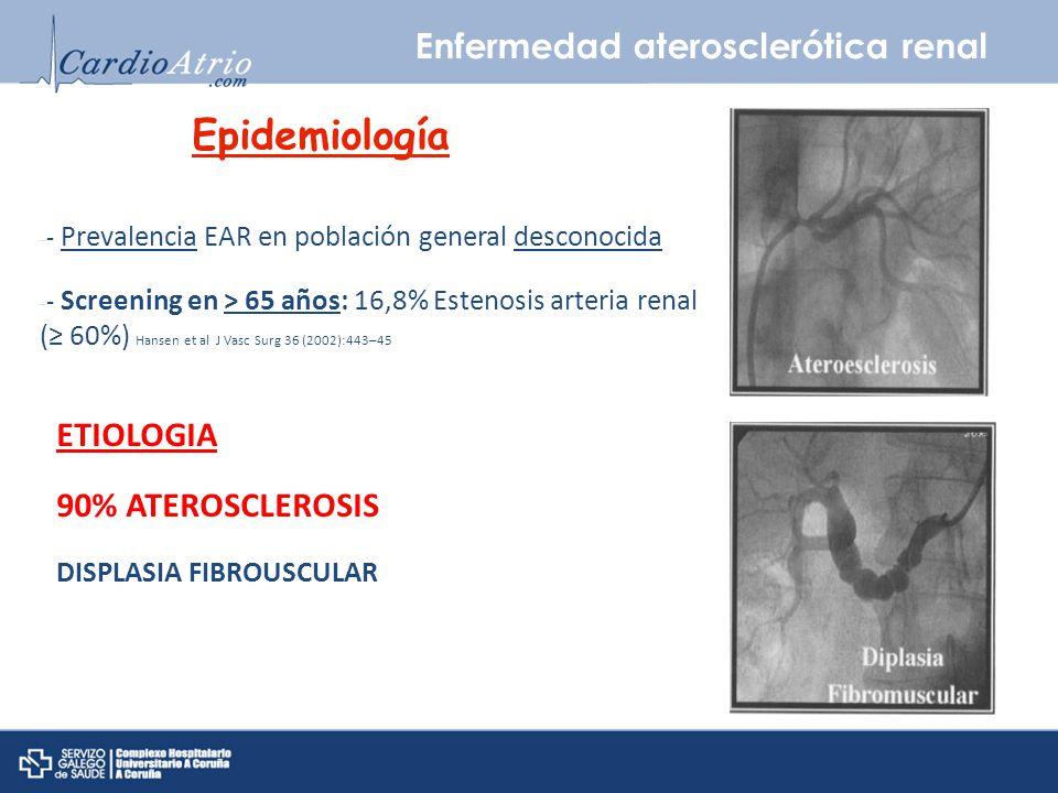 Enfermedad aterosclerótica renal Epidemiología - - Prevalencia EAR en población general desconocida - - Screening en > 65 años: 16,8% Estenosis arteri