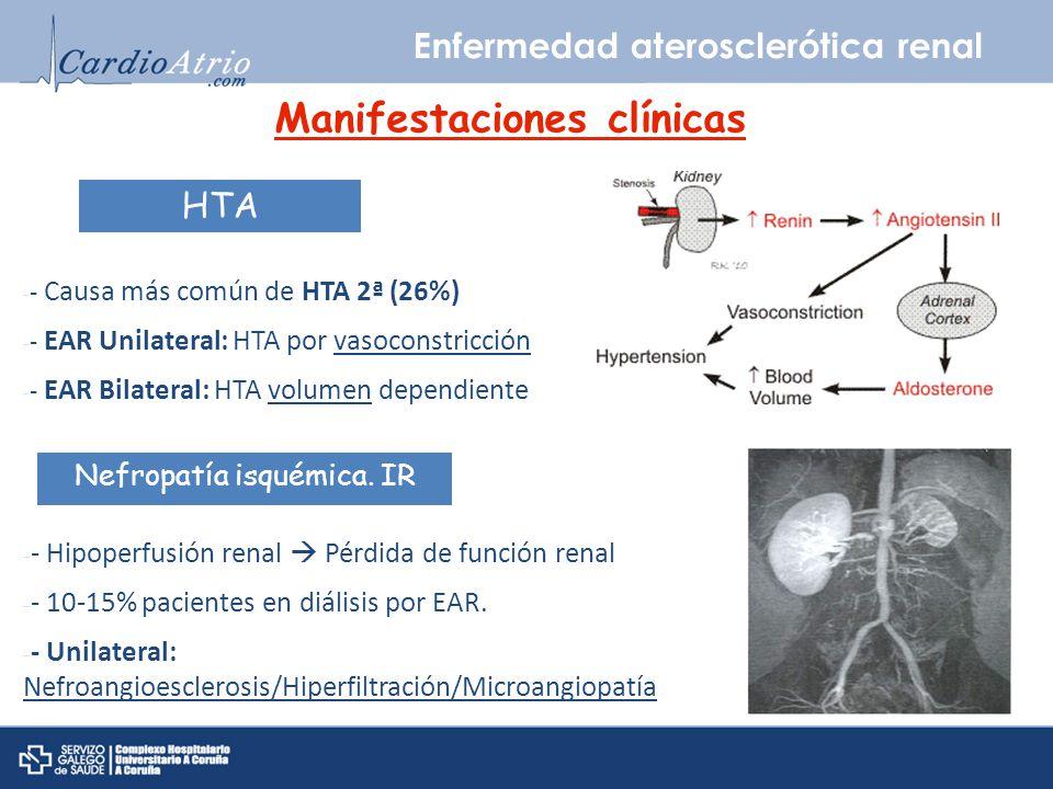 Enfermedad aterosclerótica renal Manifestaciones clínicas HTA Nefropatía isquémica. IR - - Causa más común de HTA 2ª (26%) - - EAR Unilateral: HTA por