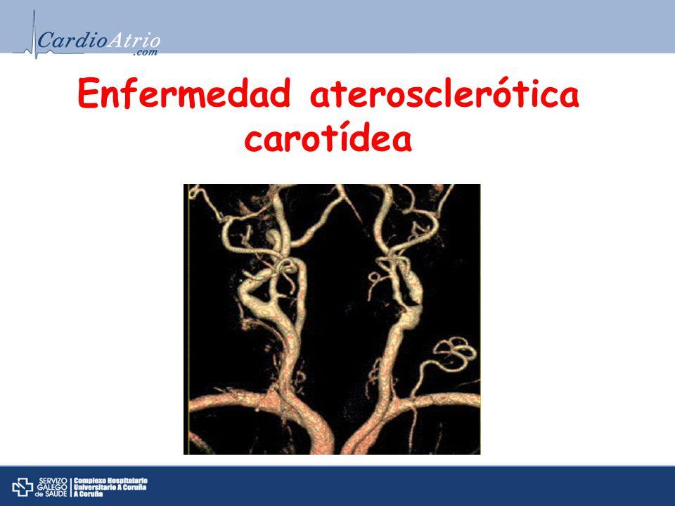 Etiopatogenia y Factores de riesgo EdadHTA y DM Comunes a la EAC Coexistencia EAC y ECV Framingham: - EAC x3 riesgo de ACV.