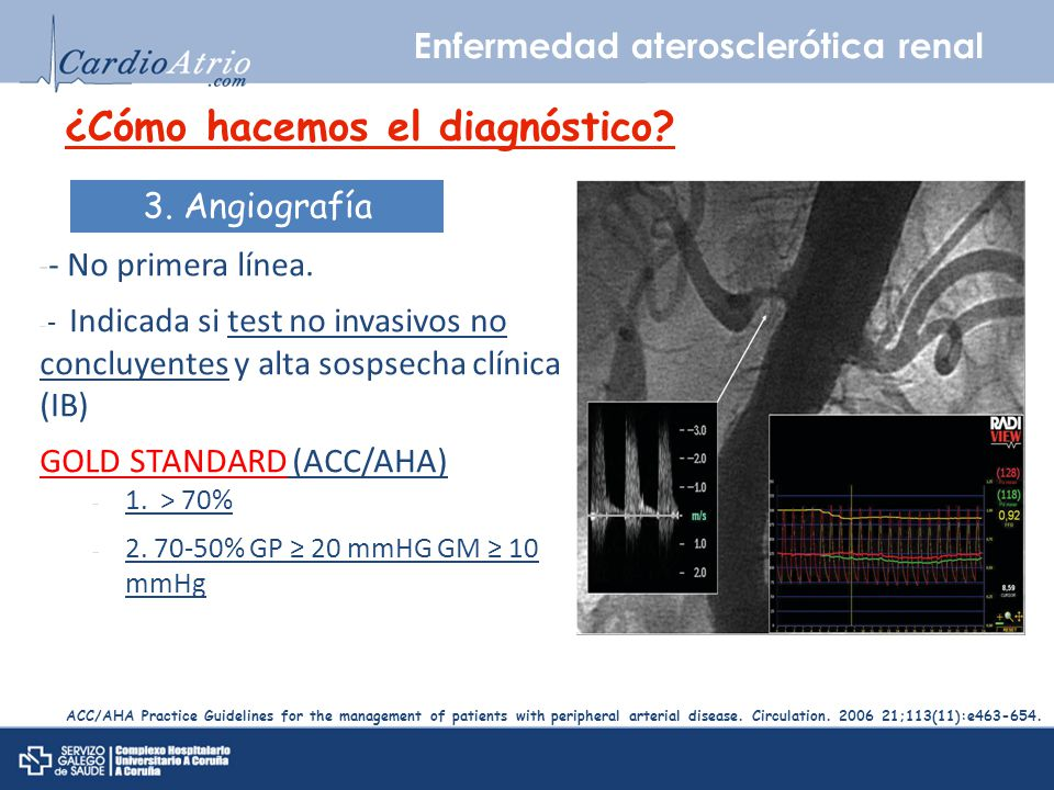 Enfermedad aterosclerótica renal ACC/AHA Practice Guidelines for the management of patients with peripheral arterial disease. Circulation. 2006 21;113