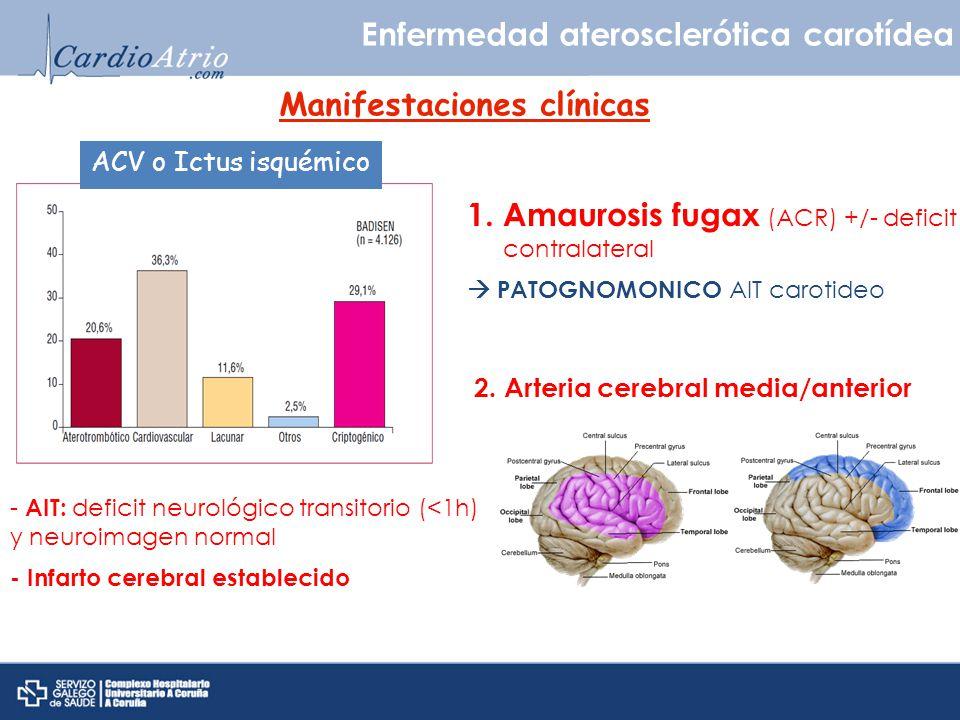 Enfermedad aterosclerótica carotídea Manifestaciones clínicas ACV o Ictus isquémico - AIT: deficit neurológico transitorio (<1h) y neuroimagen normal