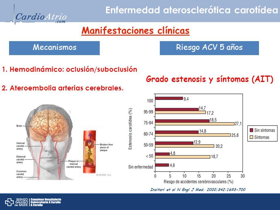 Enfermedad aterosclerótica carotídea Manifestaciones clínicas 2. Ateroembolia arterias cerebrales. Mecanismos 1. Hemodinámico: oclusión/suboclusión Ri
