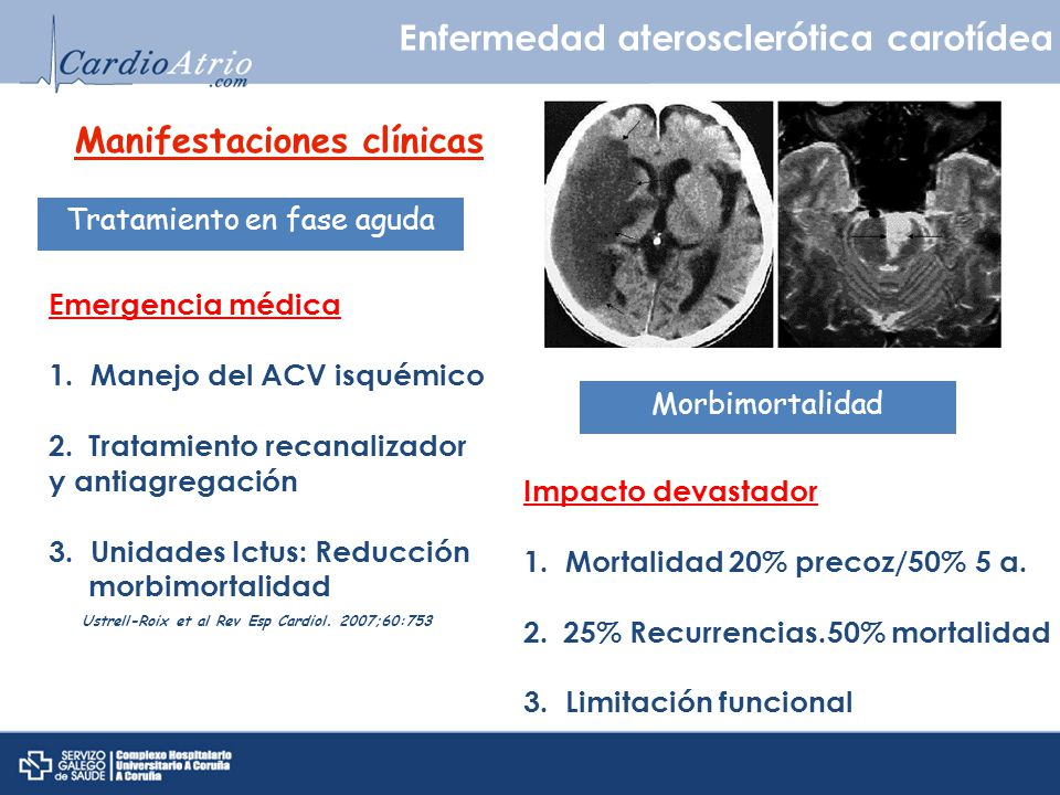 Enfermedad aterosclerótica renal Angioplastia percutánea Tratamiento ACC/AHA Practice Guidelines for the management of patients with peripheral arterial disease.